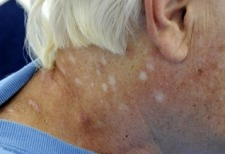 (3/02/09) Reno man claims recovery from mysterious skin disease